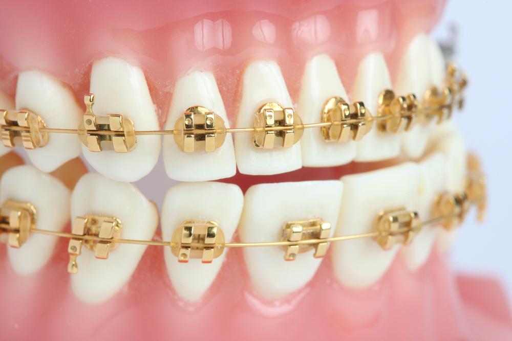 jenis-jenis behel gigi